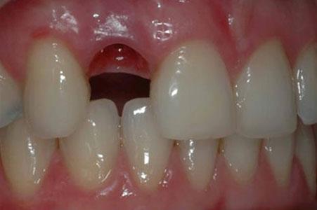 Dentadura sin diente