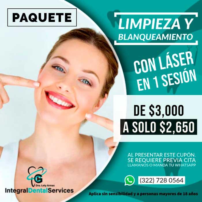 Blanqueamiento dental en Puerto Vallarta Jalisco y bahía de banderas nayarit