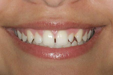 Dentadura sin carilla dental