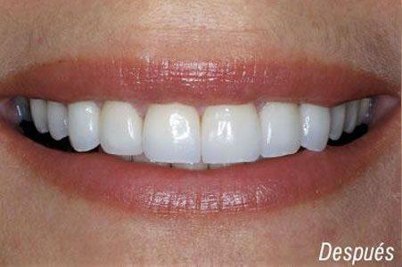 Rehabilitación Oral Integral