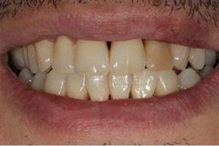 Dentadura sin blanqueamiento amarilla