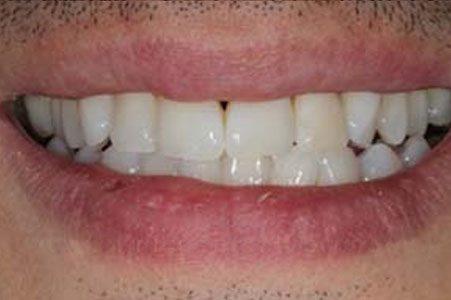 Blanqueamiento dental aplicado dientes blanqueados