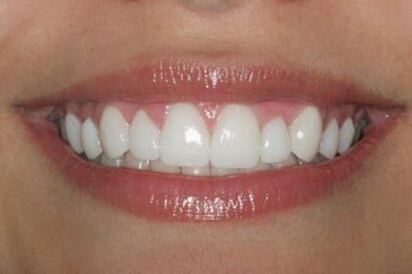 Carilla dental aplicada